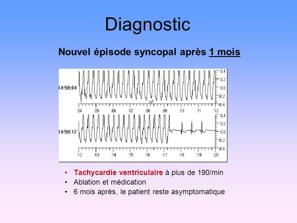 Nouvel épisode syncopal après 1 mois Diagnostic Tachycardie ventriculaire à plus de 190/min Ablation et médication 6 mois après, le patient reste asymptomatique
