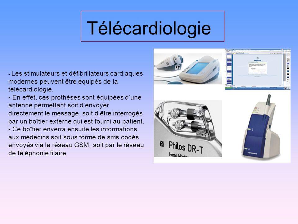 Télécardiologie - Les stimulateurs et défibrillateurs cardiaques modernes peuvent être équipés de la télécardiologie.