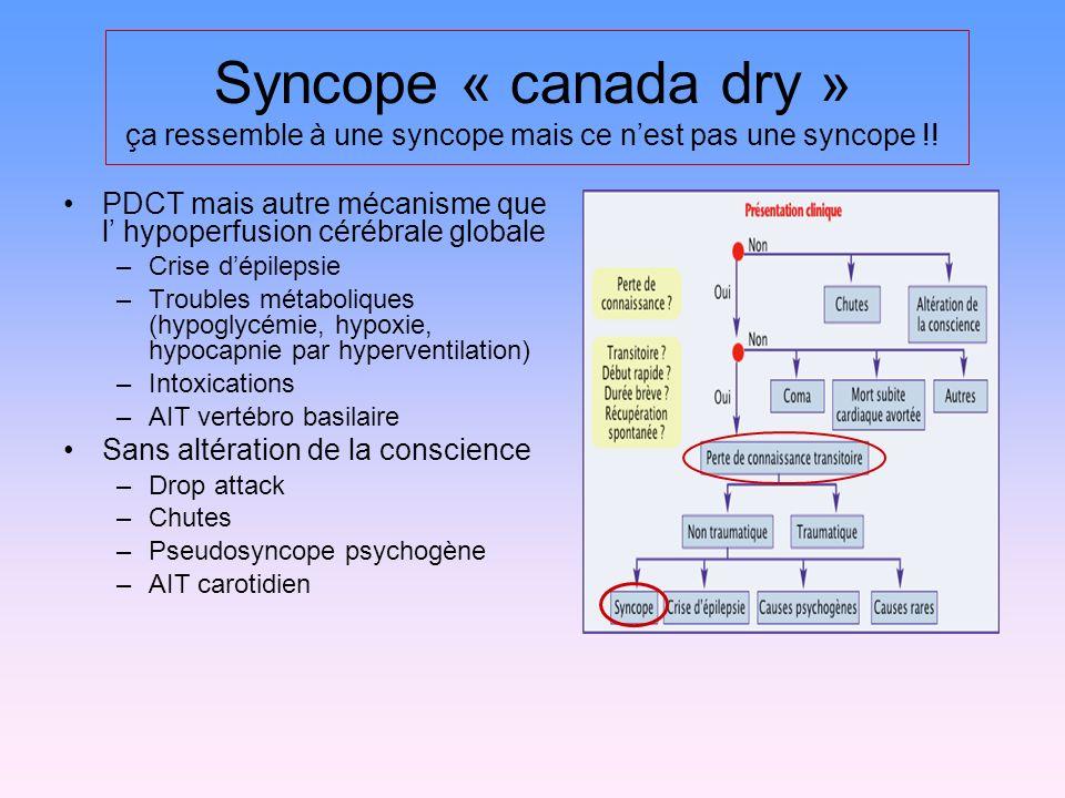 Syncope « canada dry » ça ressemble à une syncope mais ce nest pas une syncope !! PDCT mais autre mécanisme que l hypoperfusion cérébrale globale –Cri