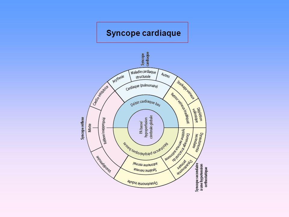 Syncope cardiaque