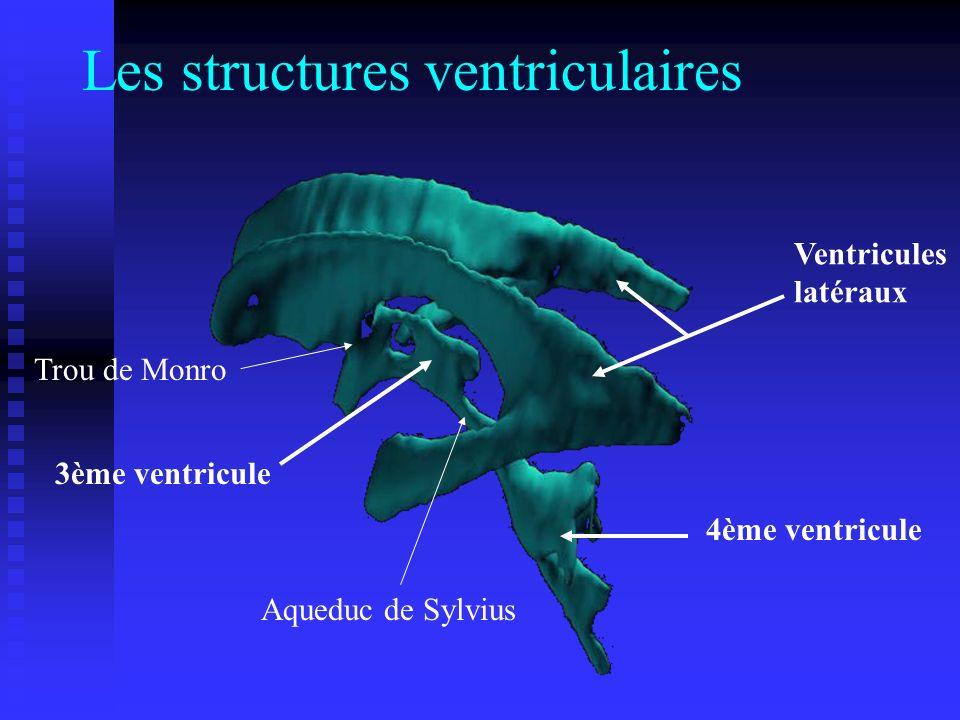 Les structures ventriculaires Ventricules latéraux 4ème ventricule 3ème ventricule Aqueduc de Sylvius Trou de Monro