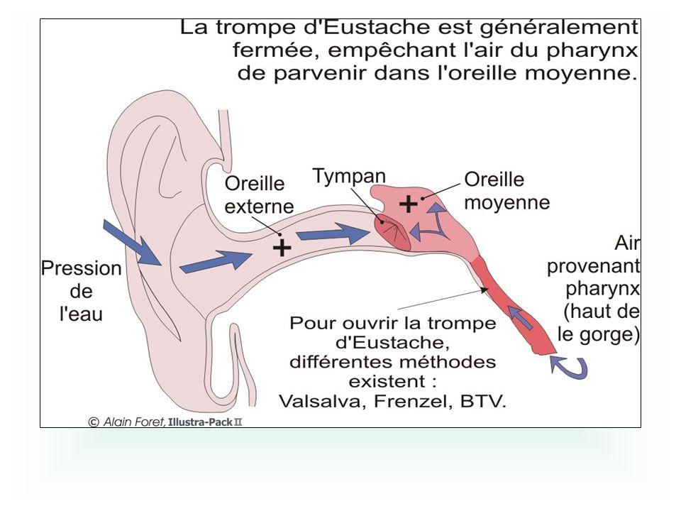 A la descente : Déséquilibre de pression entre loreille moyenne et la pression ambiante Déformation du tympan fissure rupture.