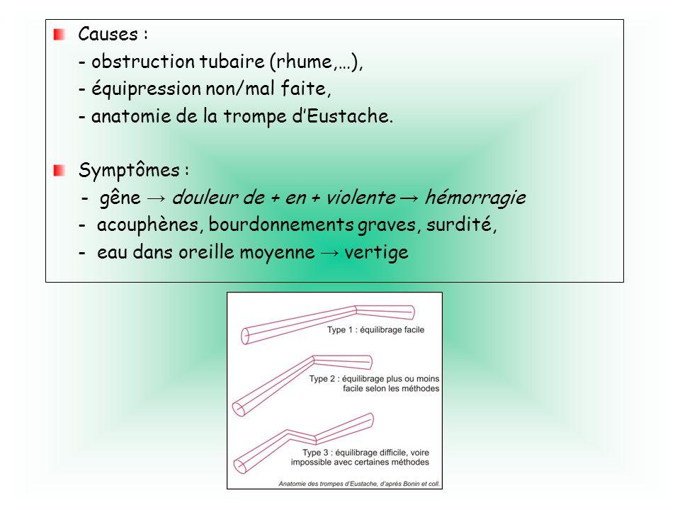 Causes : - obstruction tubaire (rhume,…), - équipression non/mal faite, - anatomie de la trompe dEustache. Symptômes : - gêne douleur de + en + violen