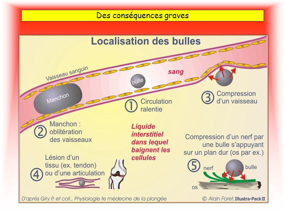Symptômes Tous les tissus de l organisme dissolvent de lazote mais tous ne présentent pas la même affinité pour ce gaz et tous ne sont pas vascularisés de la même façon.