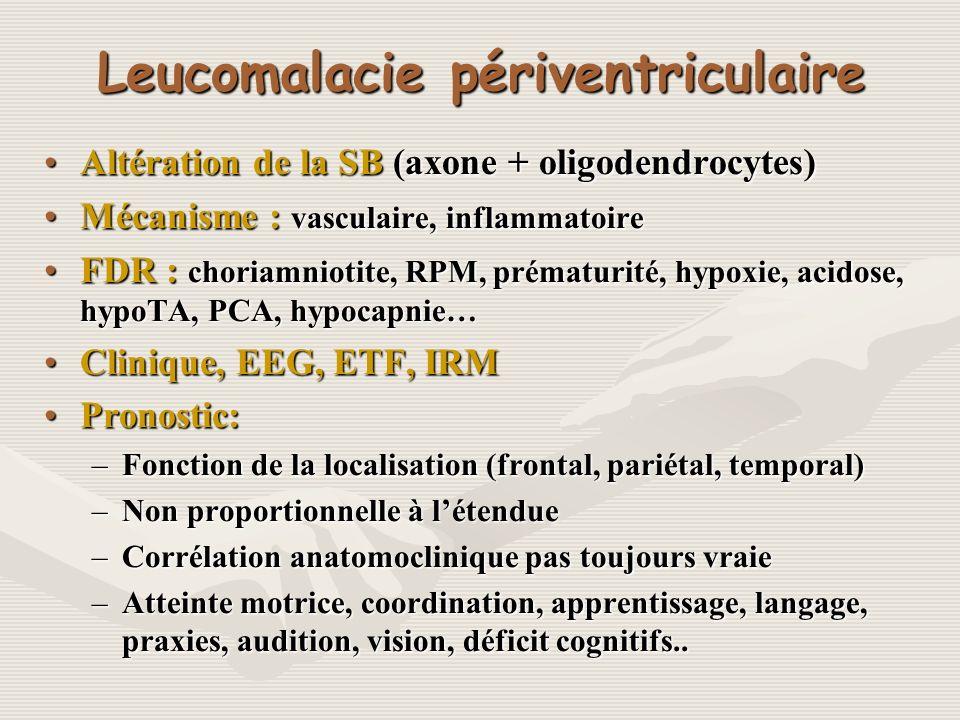 Leucomalacie périventriculaire Altération de la SB (axone + oligodendrocytes)Altération de la SB (axone + oligodendrocytes) Mécanisme : vasculaire, in