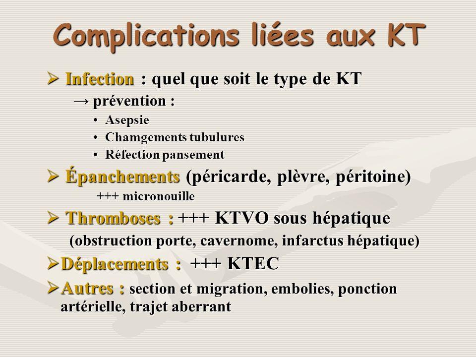 Complications liées aux KT Infection : quel que soit le type de KT Infection : quel que soit le type de KT prévention : prévention : AsepsieAsepsie Ch