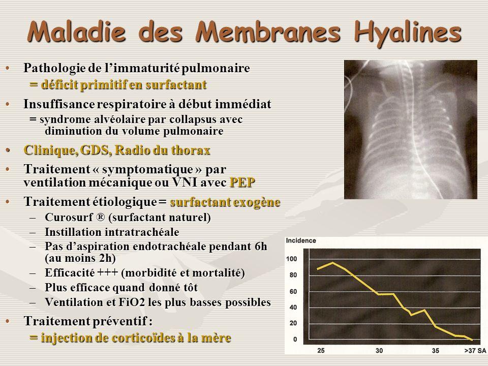 Maladie des Membranes Hyalines Pathologie de limmaturité pulmonairePathologie de limmaturité pulmonaire = déficit primitif en surfactant Insuffisance