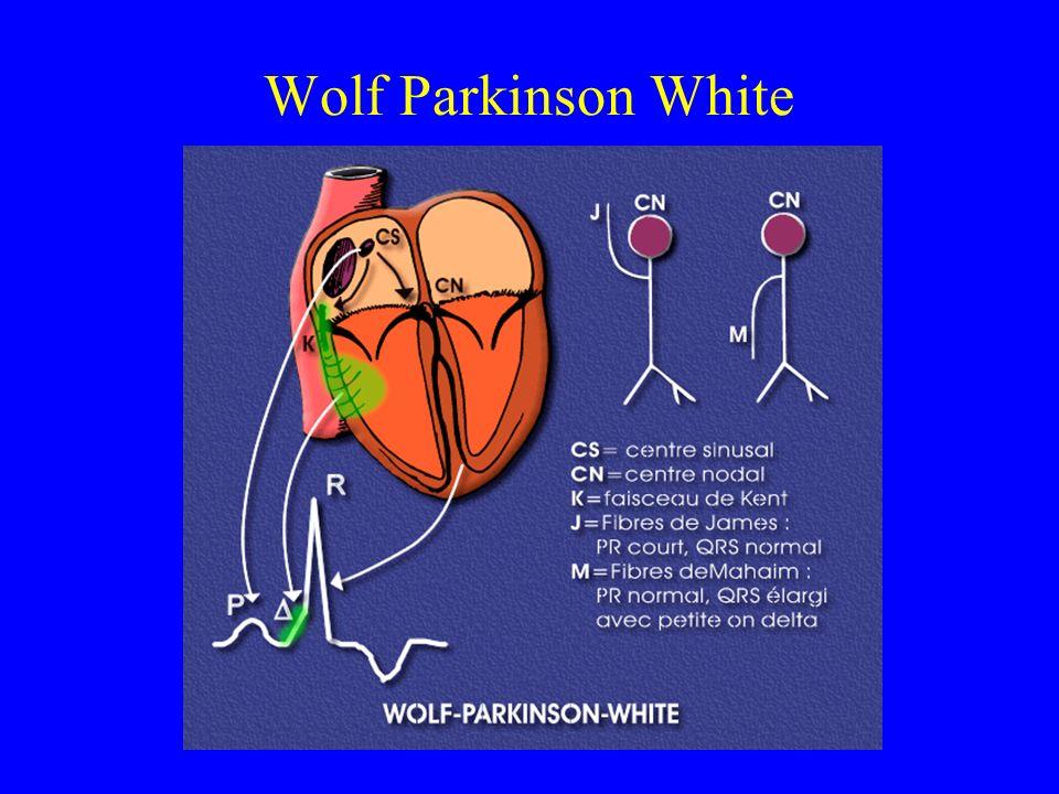 Wolf Parkinson White
