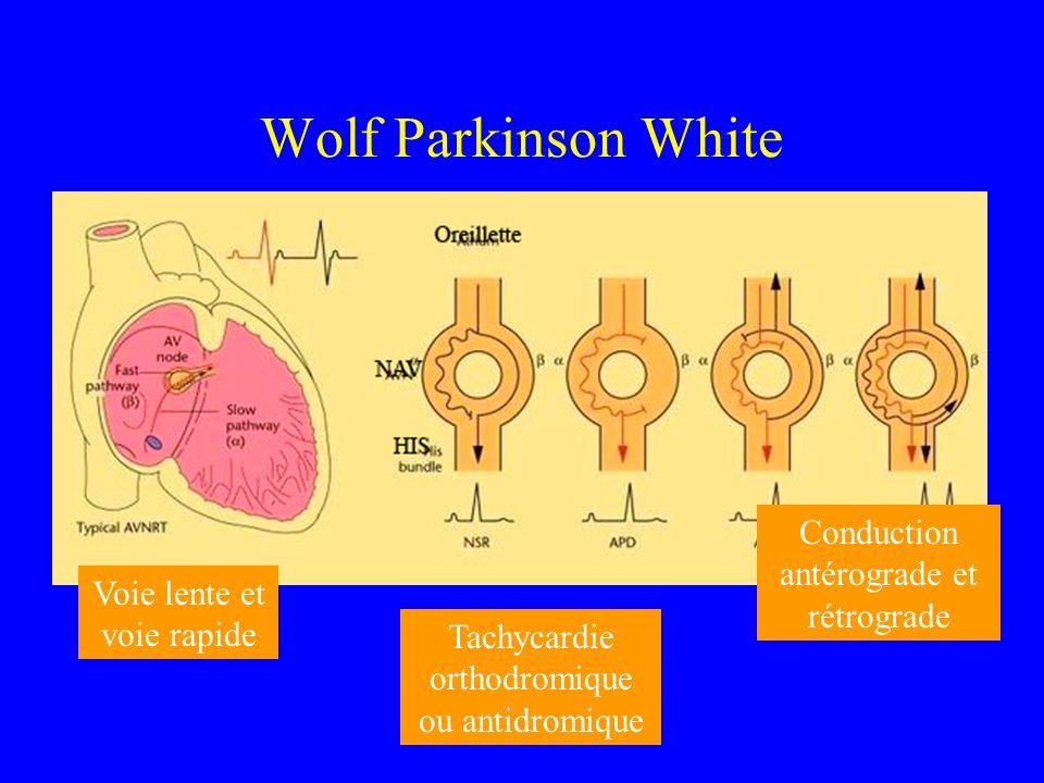 Voie rapide, voie lente, conduction antérograde ou conduction rétrograde, tachycardie ortho dromique, tachycardie antidromique… Voie lente et voie rap