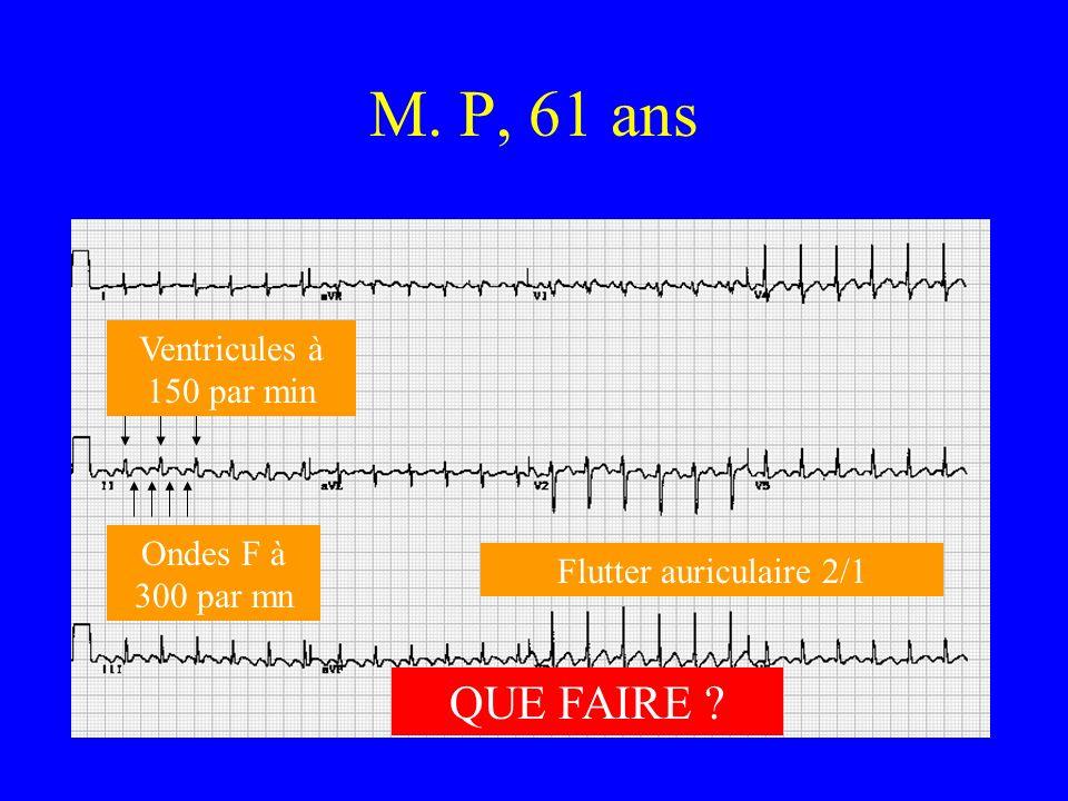 M. P, 61 ans Ondes F à 300 par mn Ventricules à 150 par min Flutter auriculaire 2/1 QUE FAIRE ?