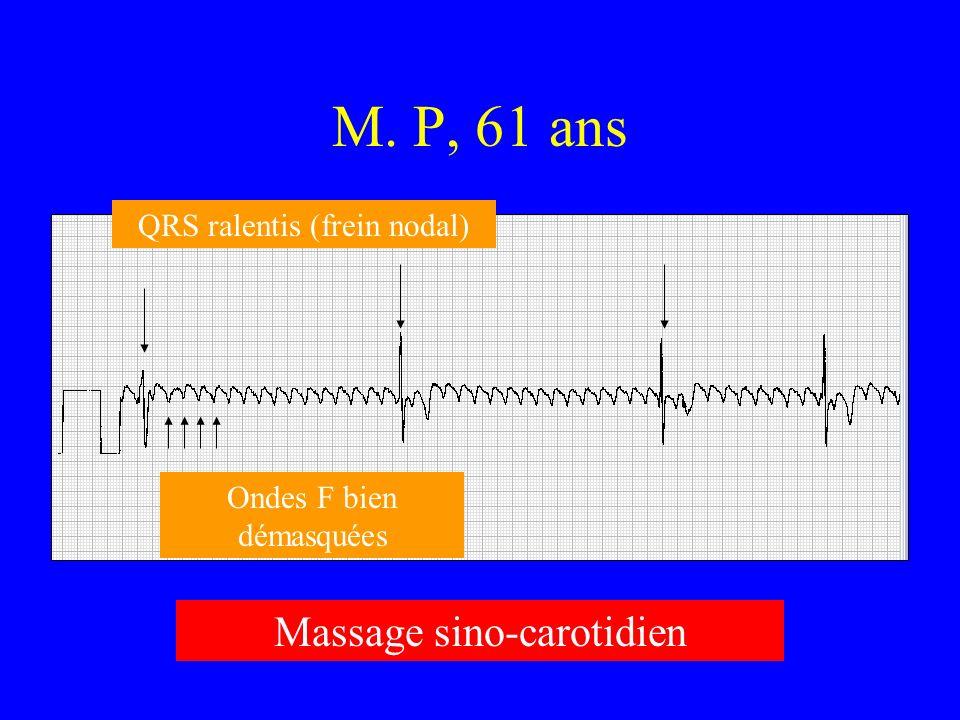M. P, 61 ans Ondes F bien démasquées QRS ralentis (frein nodal) Massage sino-carotidien