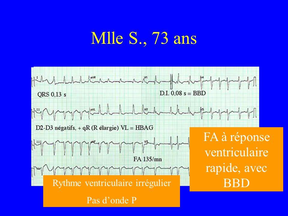 Mlle S., 73 ans Rythme ventriculaire irrégulier Pas donde P FA à réponse ventriculaire rapide, avec BBD