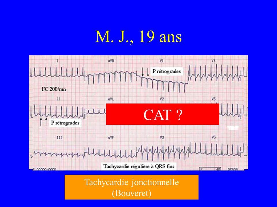 M. J., 19 ans Tachycardie jonctionnelle (Bouveret) CAT ?