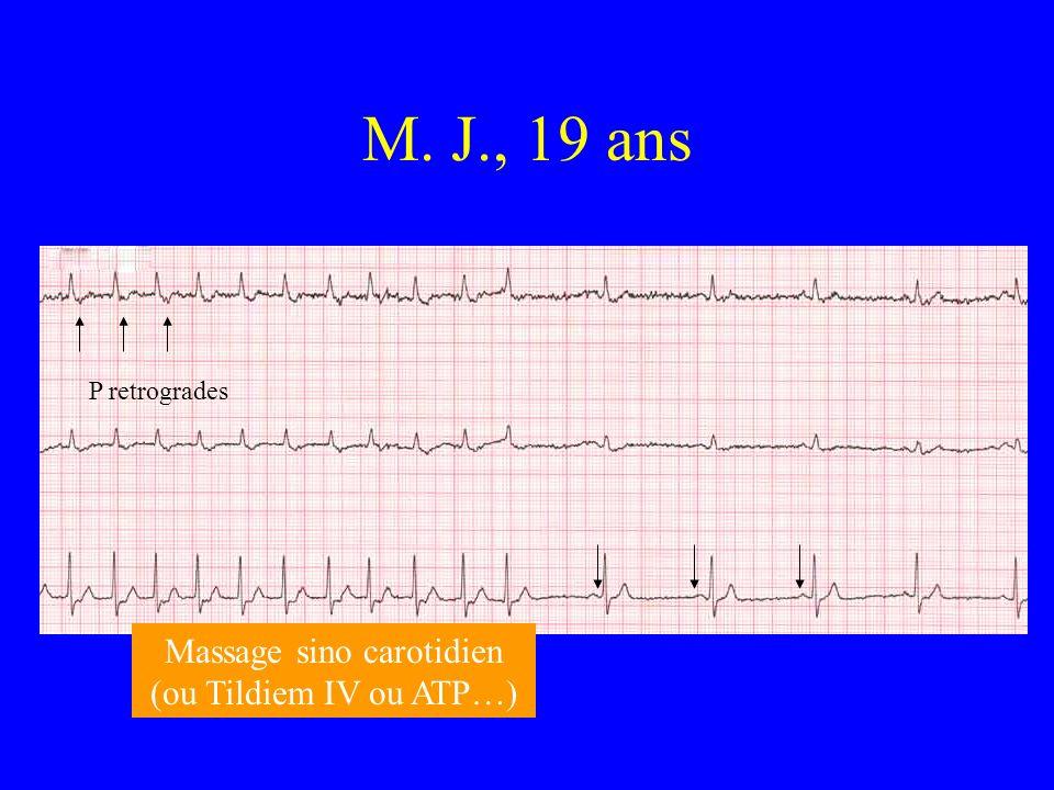 M. J., 19 ans P retrogrades Massage sino carotidien (ou Tildiem IV ou ATP…)