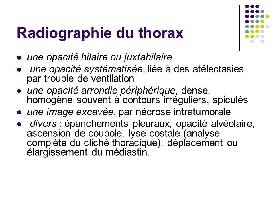 Radiographie du thorax une opacité hilaire ou juxtahilaire une opacité systématisée, liée à des atélectasies par trouble de ventilation une opacité ar