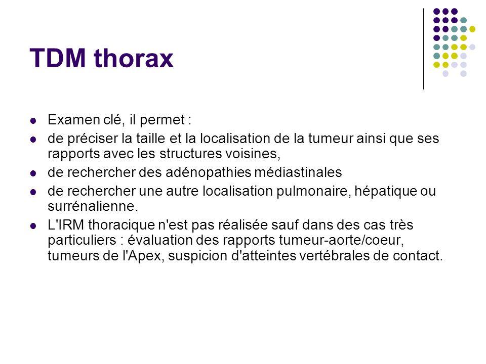 TDM thorax Examen clé, il permet : de préciser la taille et la localisation de la tumeur ainsi que ses rapports avec les structures voisines, de reche