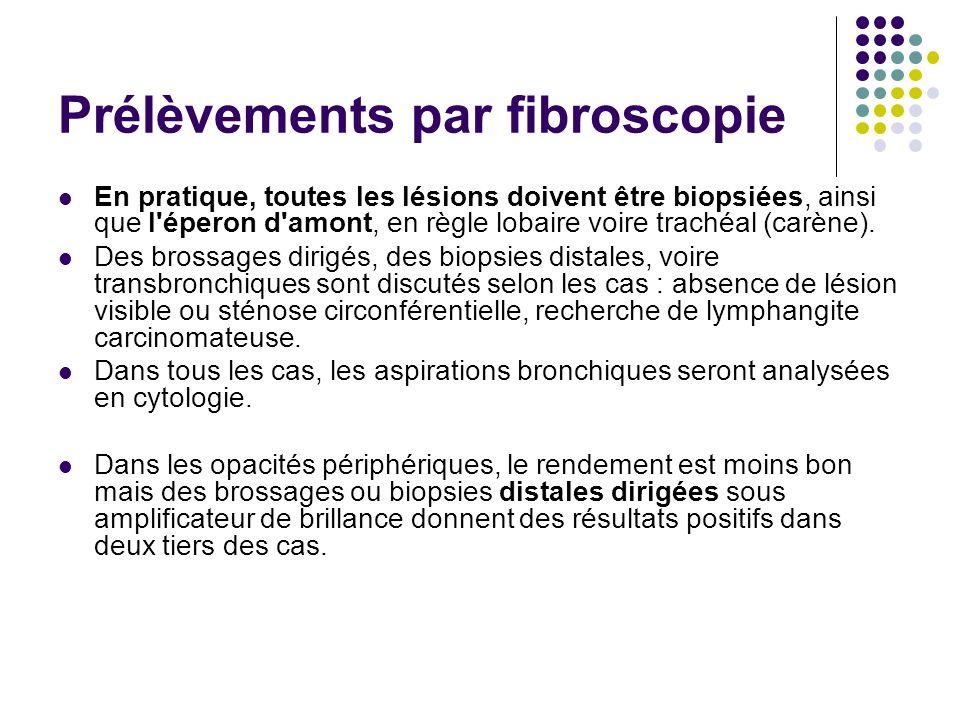 Prélèvements par fibroscopie En pratique, toutes les lésions doivent être biopsiées, ainsi que l'éperon d'amont, en règle lobaire voire trachéal (carè