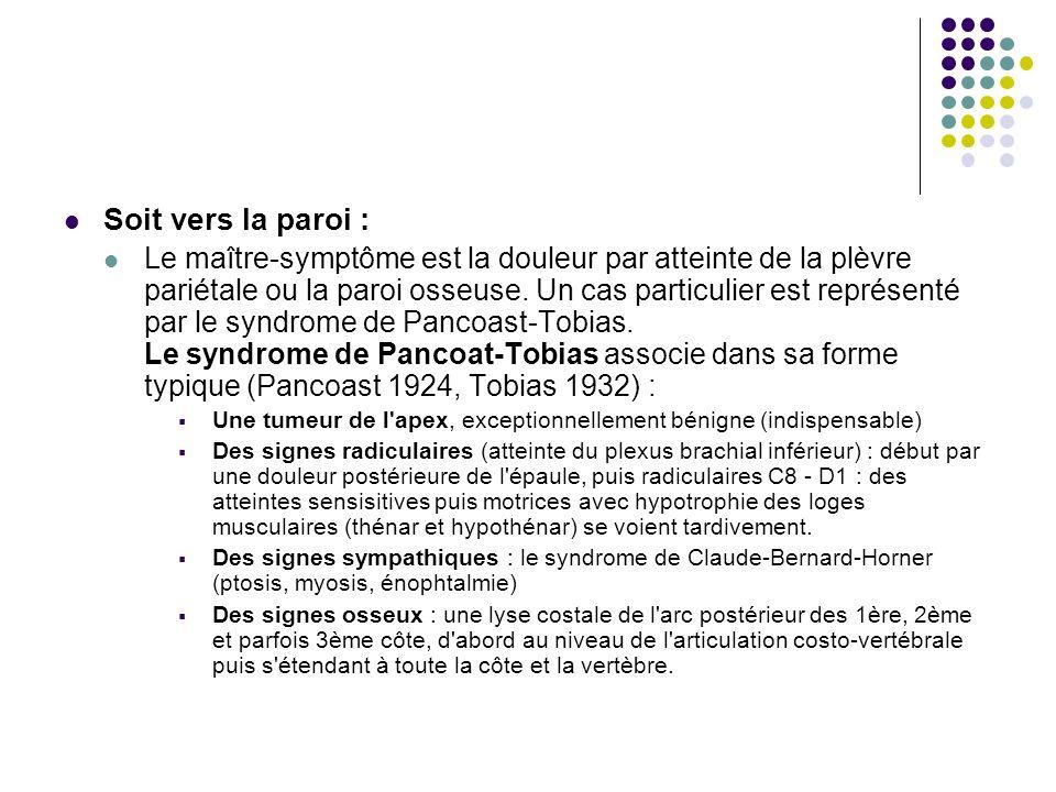 Soit vers la paroi : Le maître-symptôme est la douleur par atteinte de la plèvre pariétale ou la paroi osseuse. Un cas particulier est représenté par
