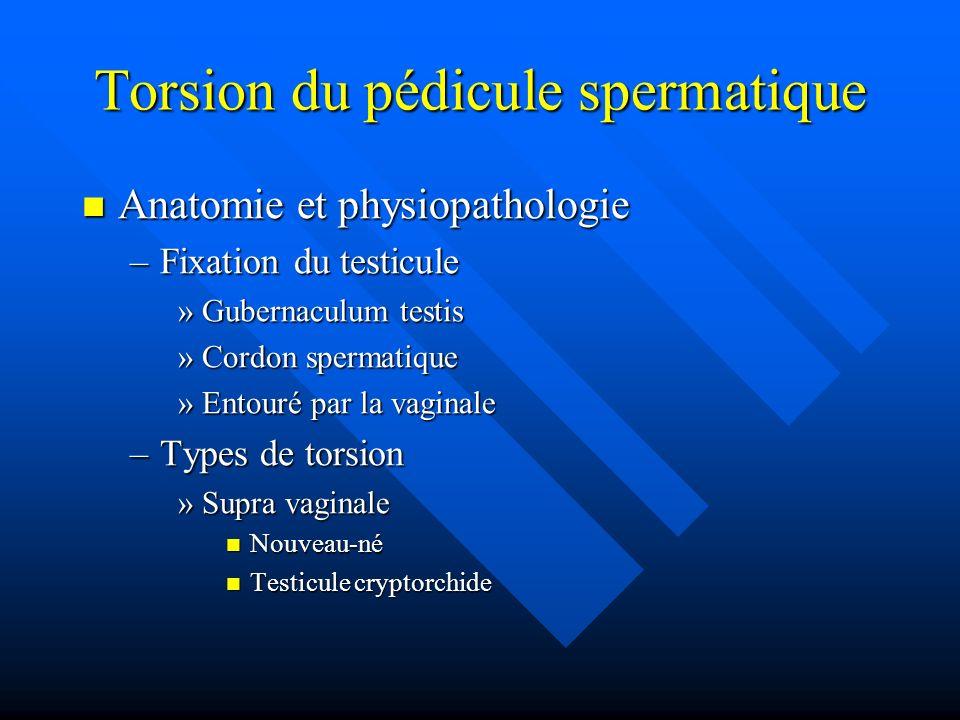 Torsion du pédicule spermatique Anatomie et physiopathologie Anatomie et physiopathologie –Fixation du testicule »Gubernaculum testis »Cordon spermati