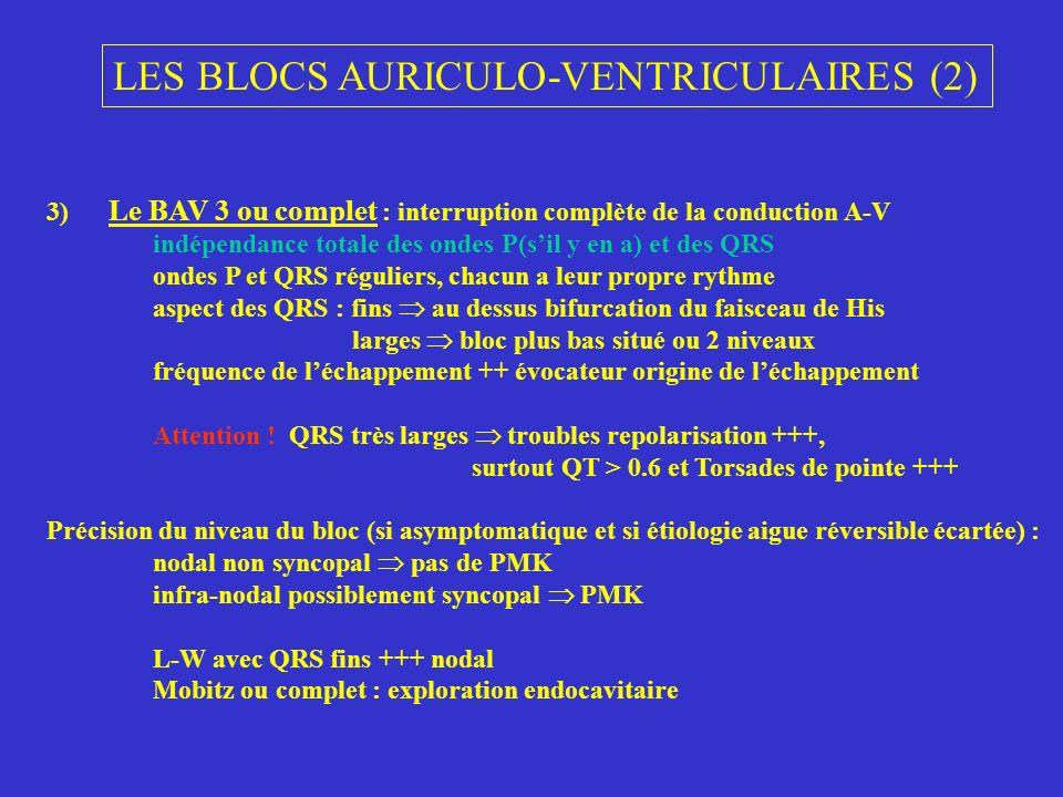 LES BLOCS AURICULO-VENTRICULAIRES (2) 3) Le BAV 3 ou complet : interruption complète de la conduction A-V indépendance totale des ondes P(sil y en a)