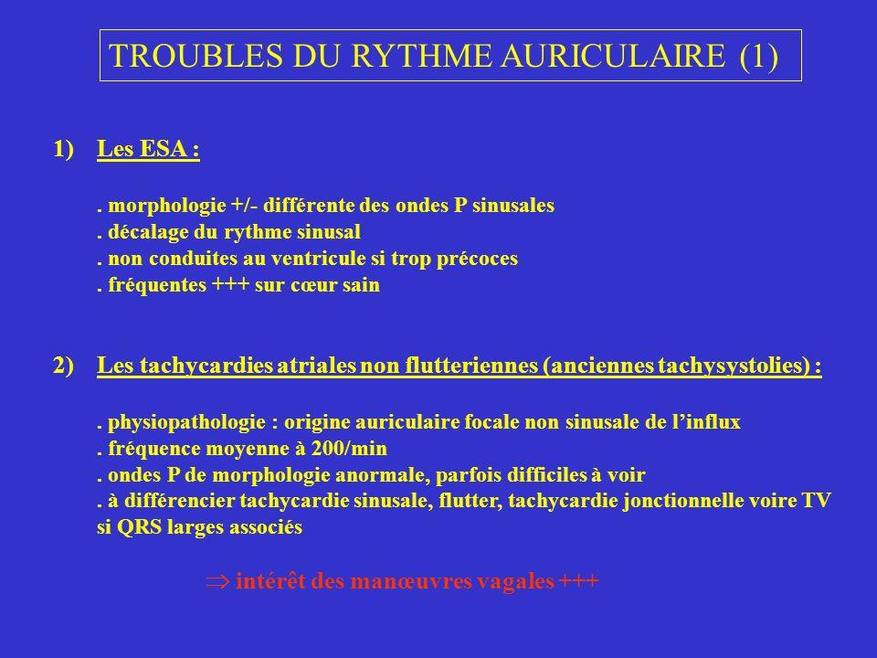 TROUBLES DU RYTHME AURICULAIRE (1) 1)Les ESA :. morphologie +/- différente des ondes P sinusales. décalage du rythme sinusal. non conduites au ventric