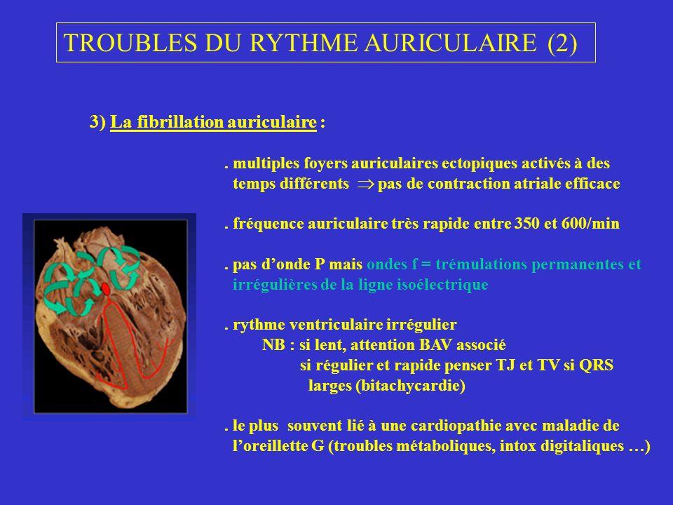 TROUBLES DU RYTHME AURICULAIRE (2) 3) La fibrillation auriculaire :. multiples foyers auriculaires ectopiques activés à des temps différents pas de co