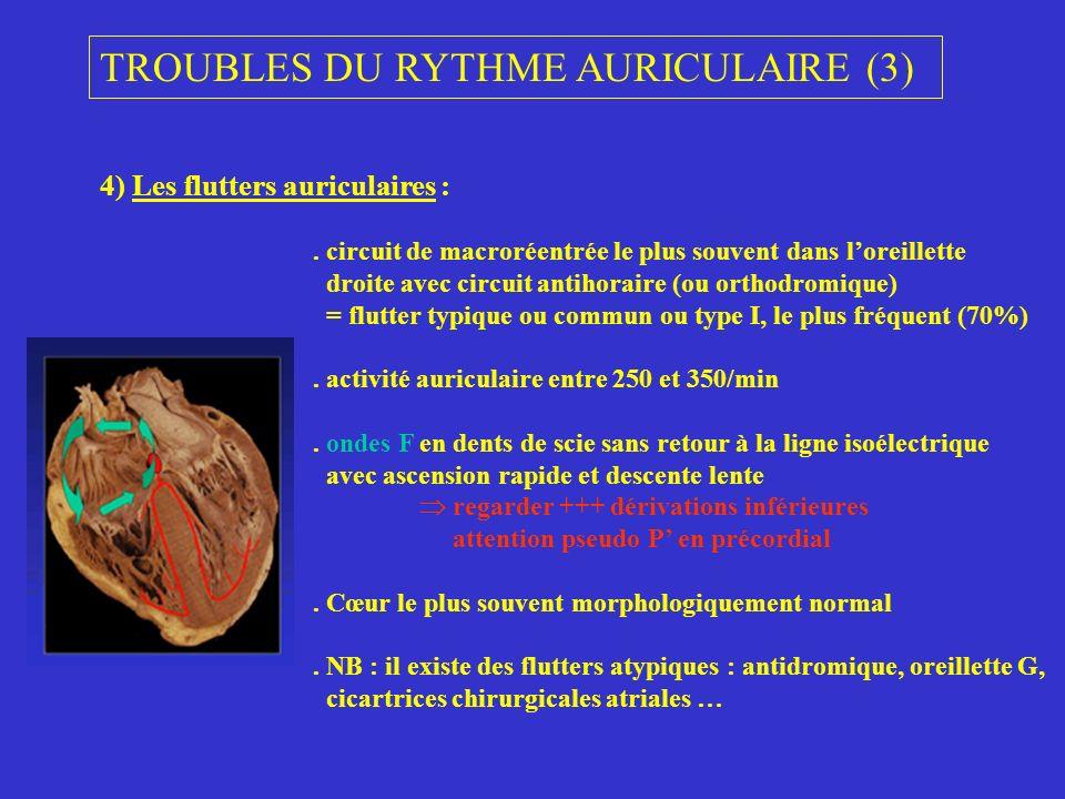 4) Les flutters auriculaires :. circuit de macroréentrée le plus souvent dans loreillette droite avec circuit antihoraire (ou orthodromique) = flutter