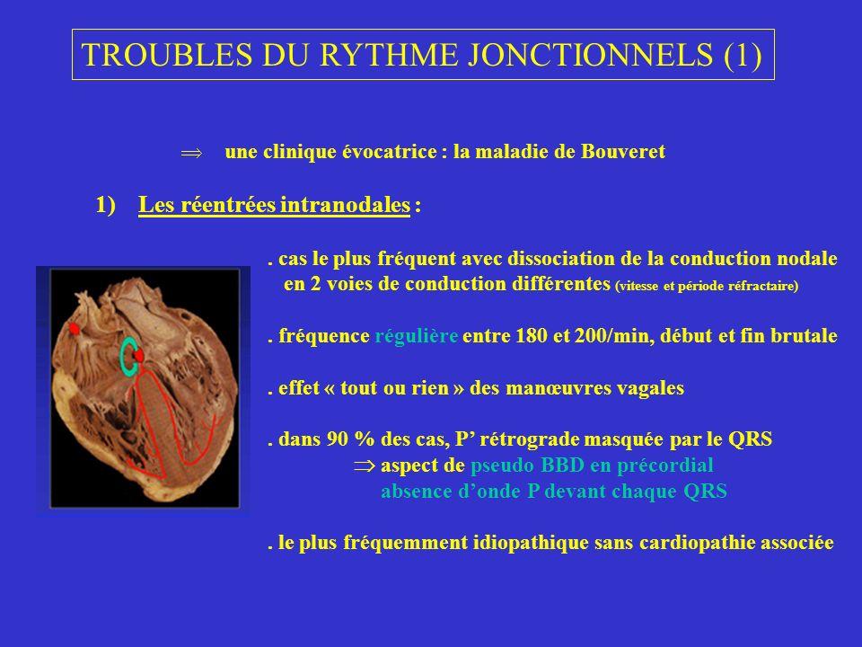 TROUBLES DU RYTHME JONCTIONNELS (1) une clinique évocatrice : la maladie de Bouveret 1)Les réentrées intranodales :. cas le plus fréquent avec dissoci