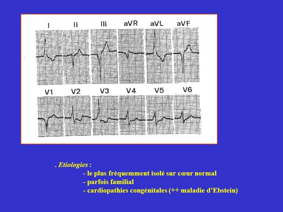 . Etiologies : - le plus fréquemment isolé sur cœur normal - parfois familial - cardiopathies congénitales (++ maladie dEbstein)