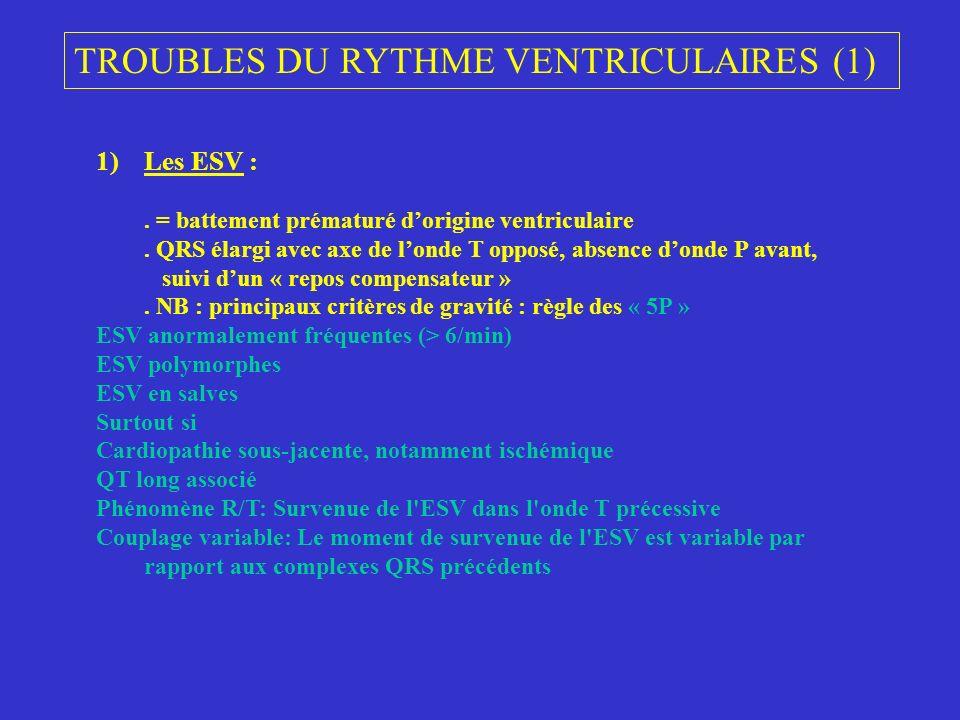 TROUBLES DU RYTHME VENTRICULAIRES (1) 1)Les ESV :. = battement prématuré dorigine ventriculaire. QRS élargi avec axe de londe T opposé, absence donde