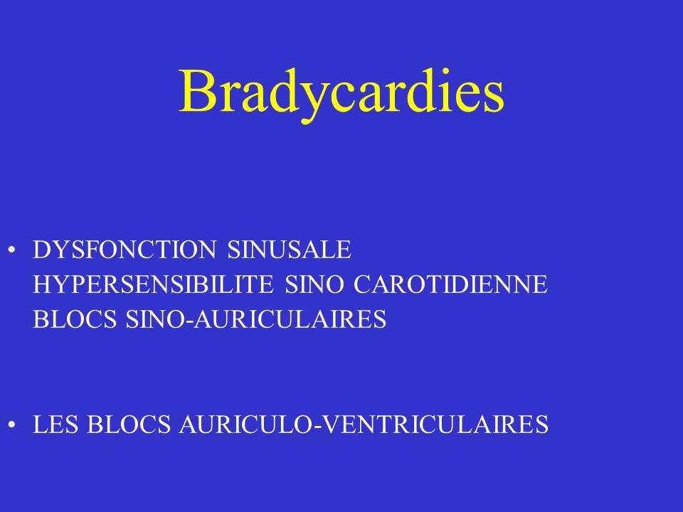 Bradycardies DYSFONCTION SINUSALE HYPERSENSIBILITE SINO CAROTIDIENNE BLOCS SINO-AURICULAIRES LES BLOCS AURICULO-VENTRICULAIRES