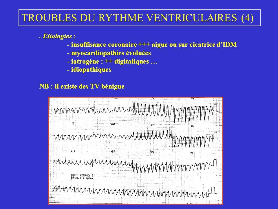 TROUBLES DU RYTHME VENTRICULAIRES (4). Etiologies : - insuffisance coronaire +++ aigue ou sur cicatrice dIDM - myocardiopathies évoluées - iatrogène :