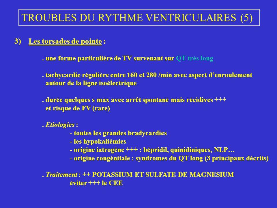 TROUBLES DU RYTHME VENTRICULAIRES (5) 3) Les torsades de pointe :. une forme particulière de TV survenant sur QT très long. tachycardie régulière entr