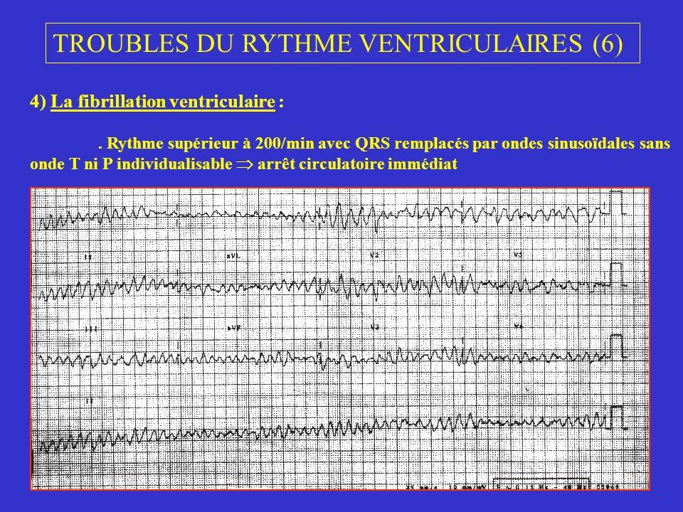 TROUBLES DU RYTHME VENTRICULAIRES (6) 4) La fibrillation ventriculaire :. Rythme supérieur à 200/min avec QRS remplacés par ondes sinusoïdales sans on