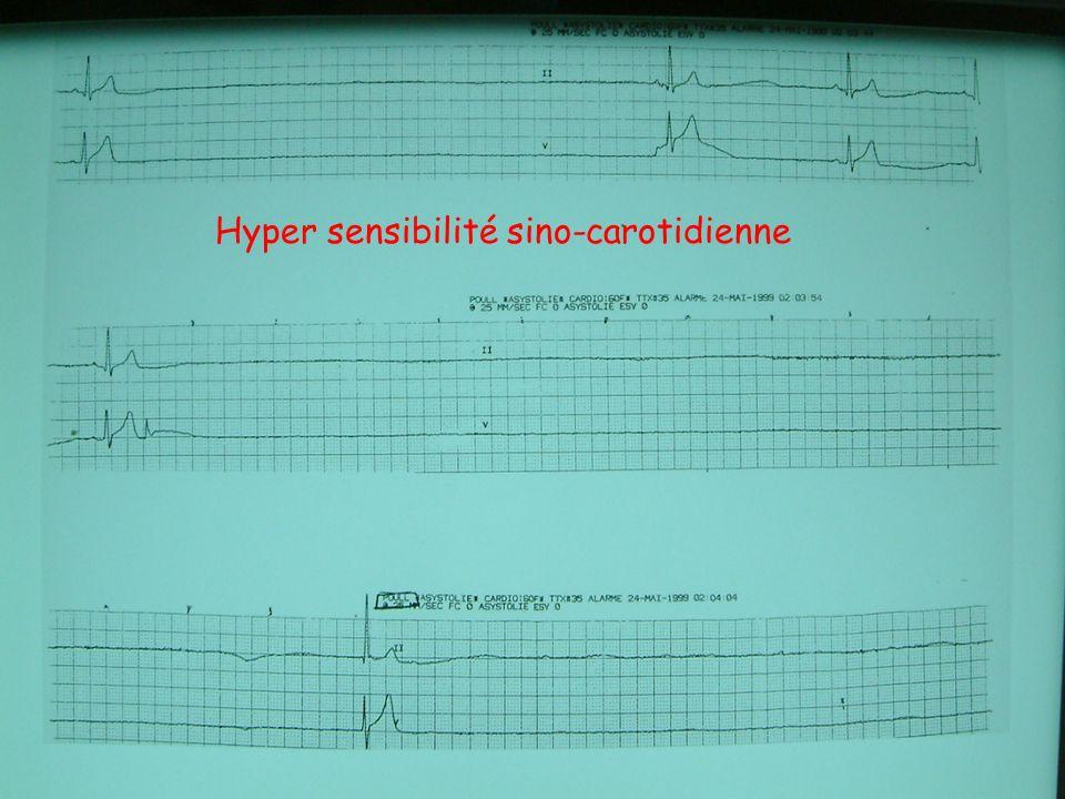 TROUBLES DE CONDUCTION : AURICULAIRES LES BLOCS SINO-AURICULAIRES (1) = trouble de conduction entre le nœud sinusal et les oreillettes.