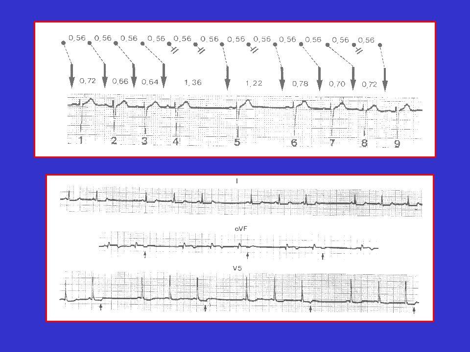 TROUBLES DU RYTHME AURICULAIRE (2) 3) La fibrillation auriculaire :.