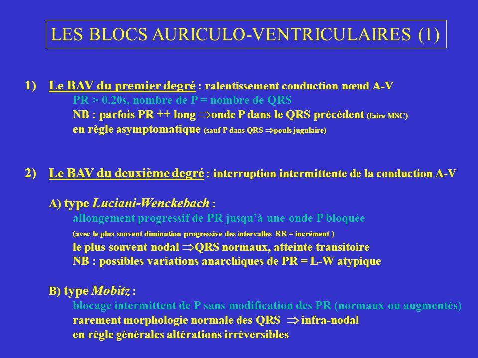 LES BLOCS AURICULO-VENTRICULAIRES (2) 3) Le BAV 3 ou complet : interruption complète de la conduction A-V indépendance totale des ondes P(sil y en a) et des QRS ondes P et QRS réguliers, chacun a leur propre rythme aspect des QRS : fins au dessus bifurcation du faisceau de His larges bloc plus bas situé ou 2 niveaux fréquence de léchappement ++ évocateur origine de léchappement Attention .