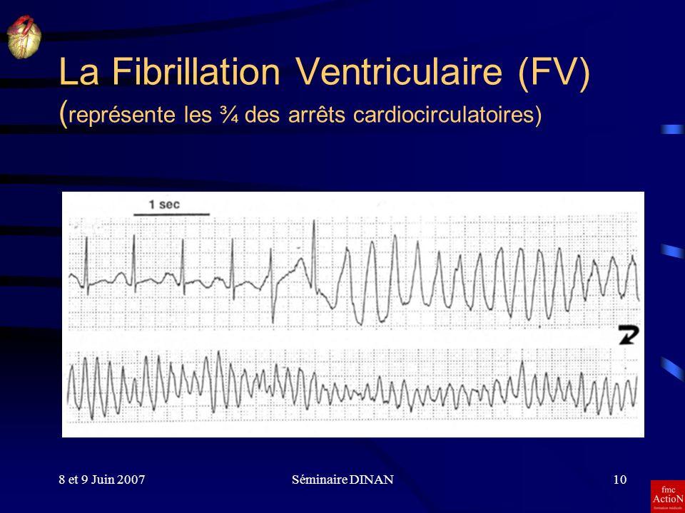 8 et 9 Juin 2007Séminaire DINAN10 La Fibrillation Ventriculaire (FV) ( représente les ¾ des arrêts cardiocirculatoires)