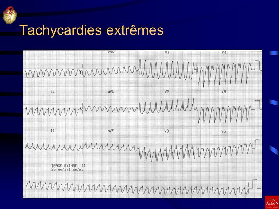 8 et 9 Juin 2007Séminaire DINAN11 Tachycardies extrêmes