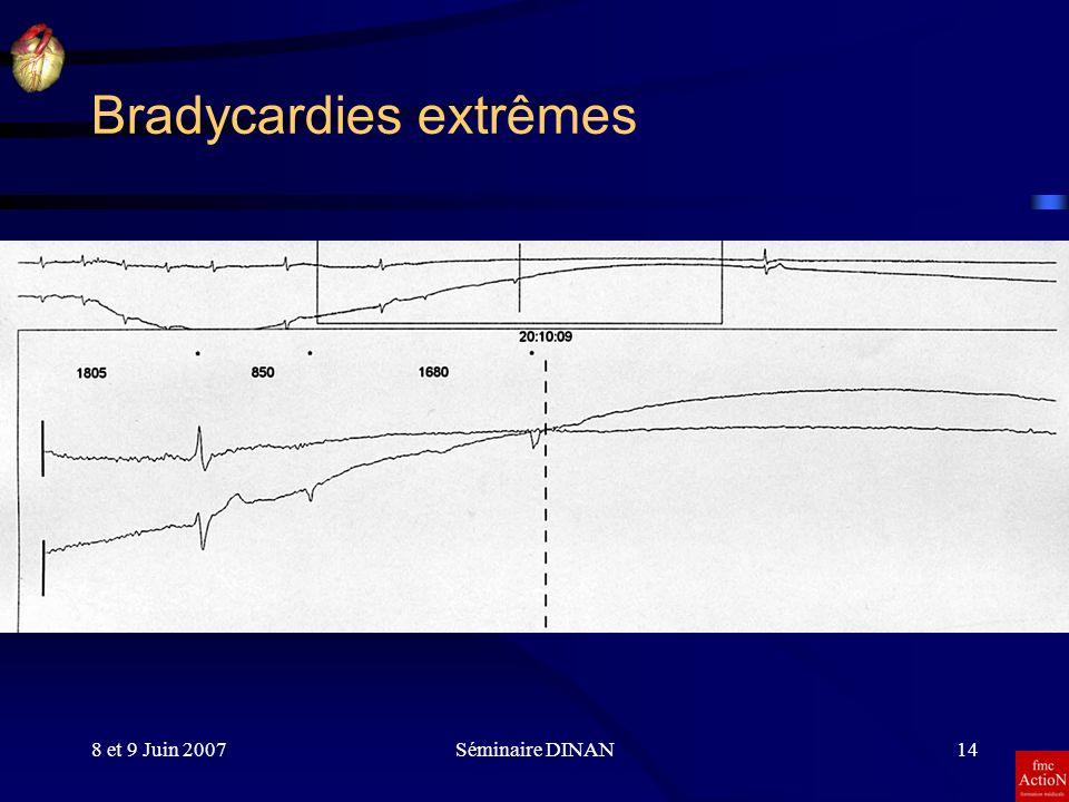 8 et 9 Juin 2007Séminaire DINAN14 Bradycardies extrêmes