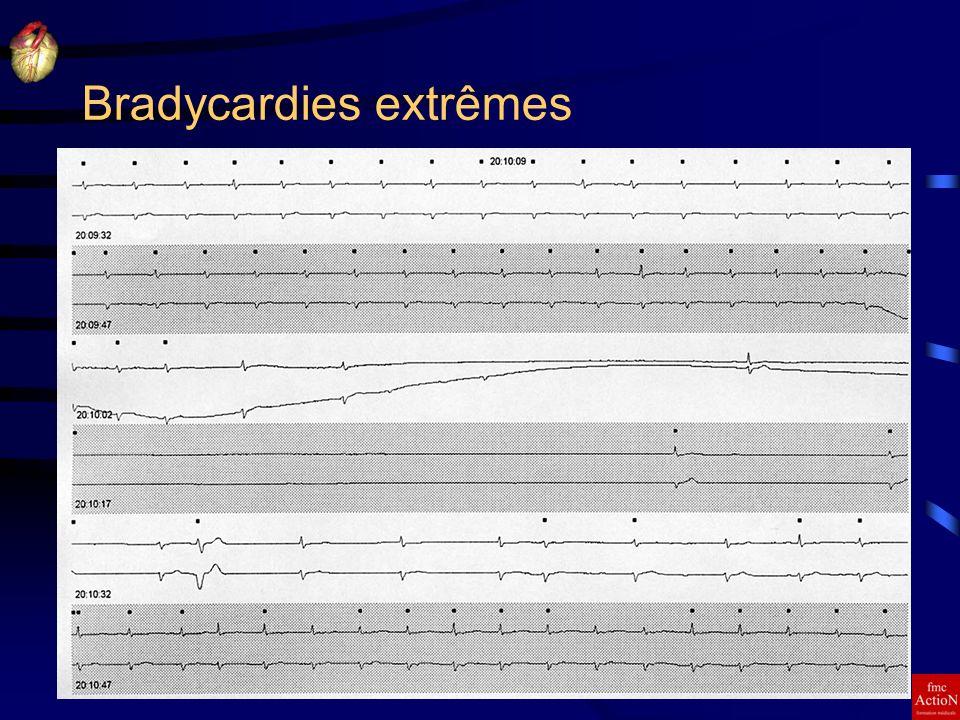8 et 9 Juin 2007Séminaire DINAN15 Bradycardies extrêmes