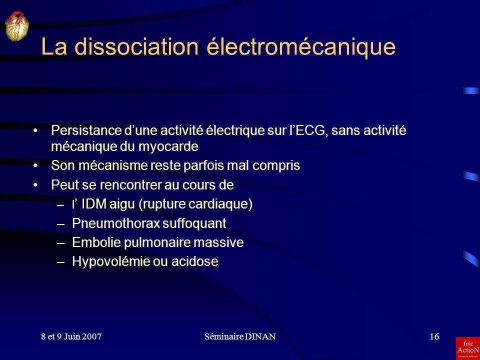 8 et 9 Juin 2007Séminaire DINAN16 La dissociation électromécanique Persistance dune activité électrique sur lECG, sans activité mécanique du myocarde