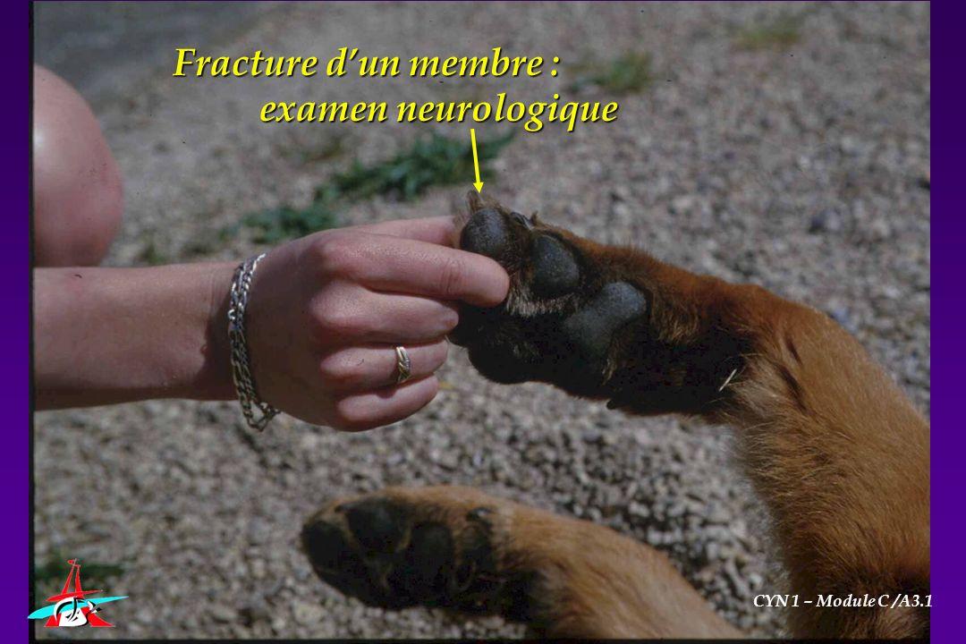 Fracture dun membre : examen neurologique CYN 1 – Module C /A3.1