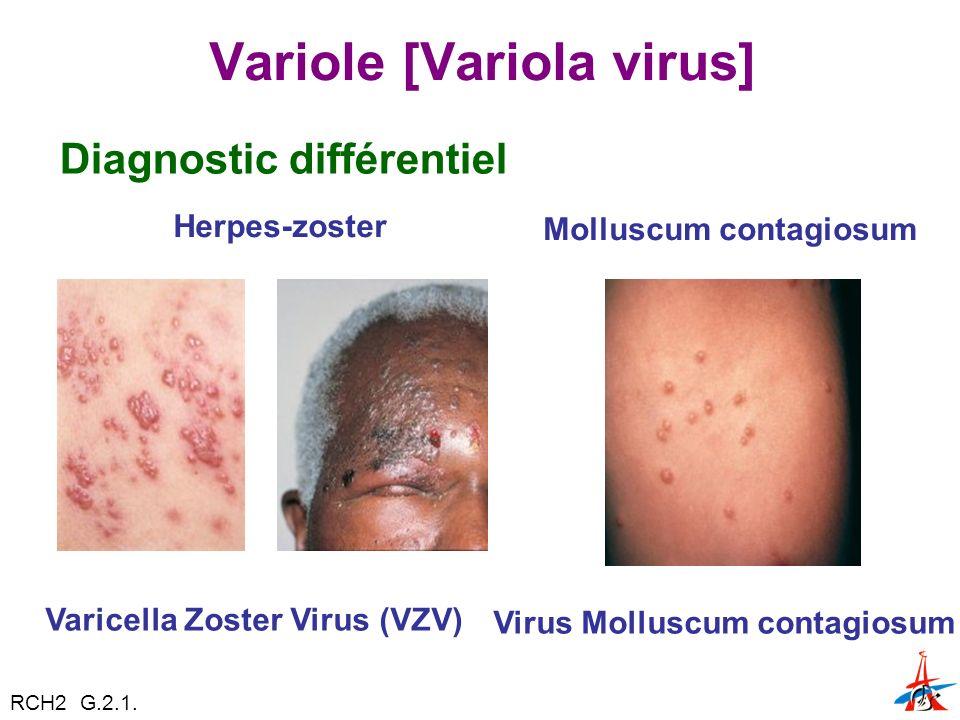 Variole [Variola virus] Diagnostic différentiel Herpes-zoster Varicella Zoster Virus (VZV) Molluscum contagiosum Virus Molluscum contagiosum RCH2 G.2.