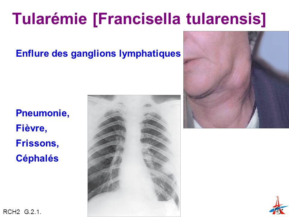 Tularémie [Francisella tularensis] Enflure des ganglions lymphatiques Pneumonie, Fièvre, Frissons, Céphalés RCH2 G.2.1.