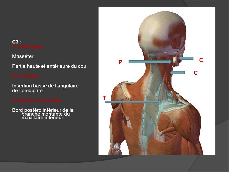 C4 : 1/ Cellulalgie Fosse sus épineuse Région sus et sous claviculaire 2/ Myalgie Angulaire de lomoplate C C M