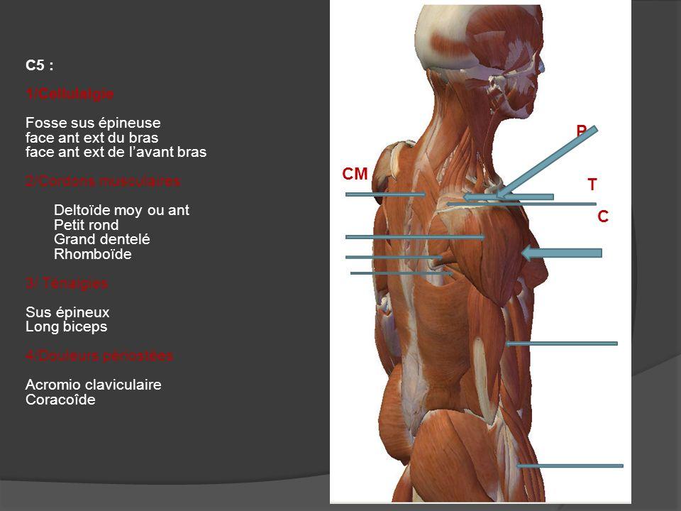 C6 : 1/ Cellulalgie Fosse sus épineuse face ext du bras face ant ext de lavant bras 2/ Cordons musculaires Sous épineux 3/Ténalgies Insertion distale du SCM long biceps Sus et sous épineux V deltoïdien Epicondyliens 4/ Douleurs périostées Sterno claviculaire Epicondyliens C CM T T P
