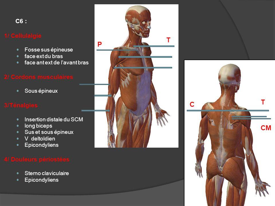 C7 : 1/ Cellulalgie Fosse sus épineuse Partie post ext bras et avant bras 2/ Ténalgie Epicondyliens 3/ Douleur périostée Epicondyle C T P
