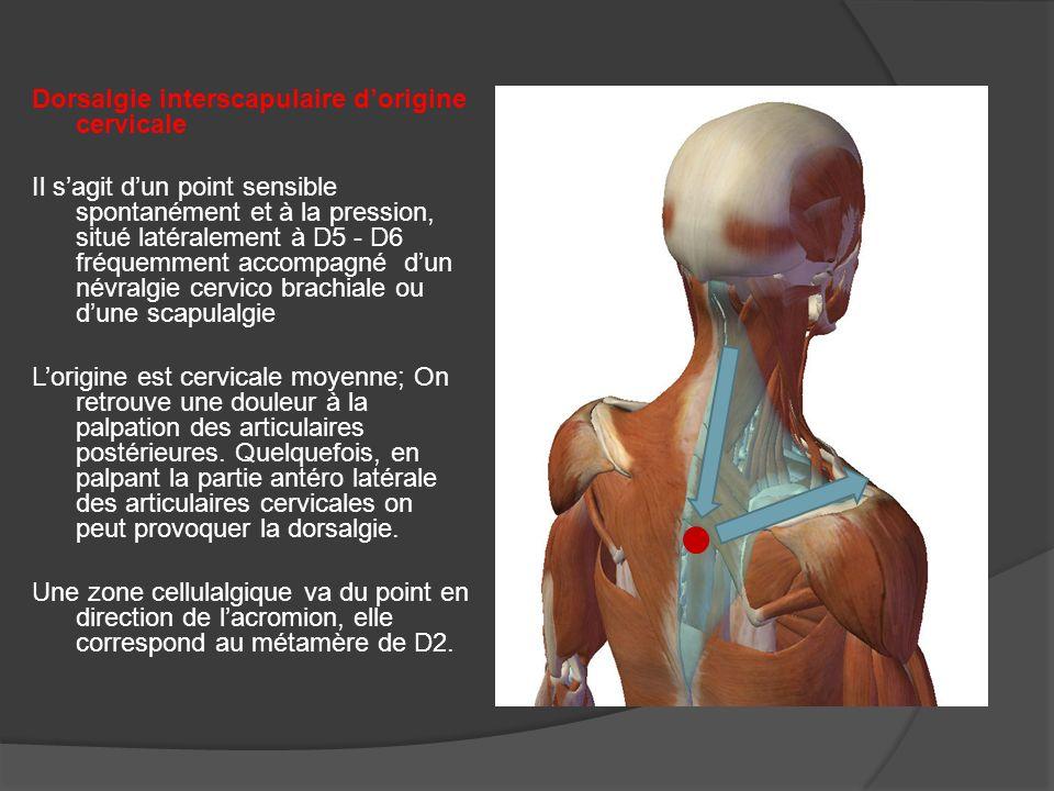 Ne pas méconnaitre les douleurs abdominales dorigine dorsale D6 D7 D8 en relation avec la région épigastrique D9 D10 la région intestinale et génito urinaire Les douleurs pariétales de labdomen pour lesquelles, les différentes investigations viscérales restent toujours négatives