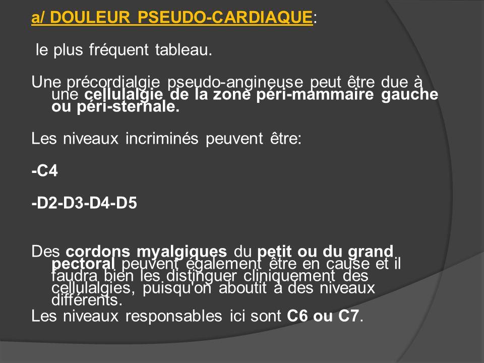 b/ DOULEUR PSEUDO-MAMMAIRE Certaines douleurs pouvant être rapportées au seins ont exactement la même origine: -cellulalgie C4 ou D2-D5 -cordons myalgiques C6-C7.